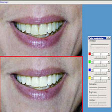 Cosmetic Imaging